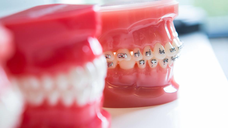 Стоимость ортодонтического лечения