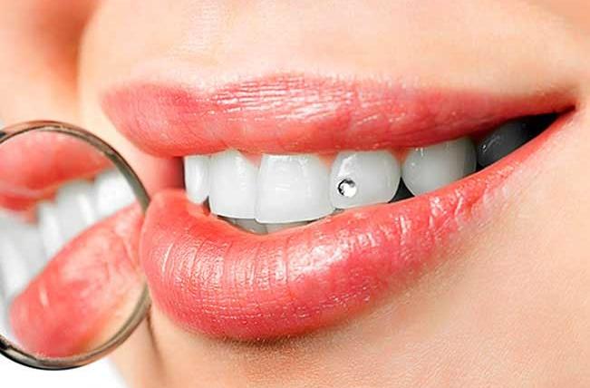 Скайсы – украшения для зубов